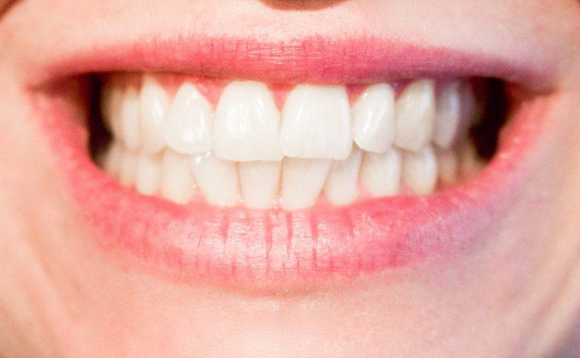 Aktualna technologia stosowana w salonach stomatologii estetycznej być może spowodować, że odzyskamy śliczny uśmiech.